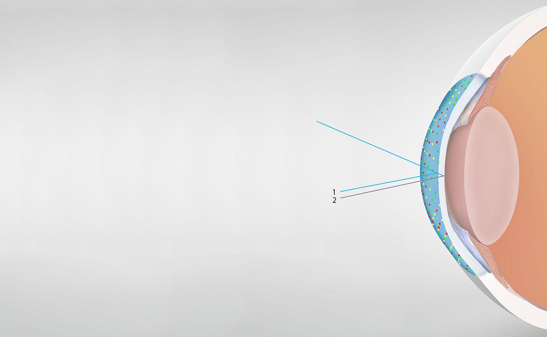 corneal measurement