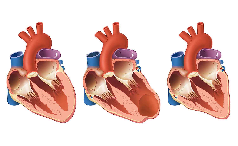 heart fallure