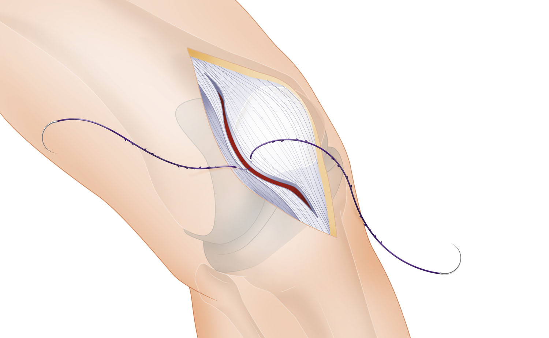 knee prosthetics