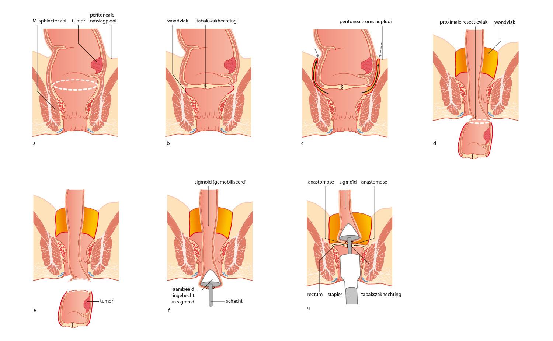 rectal surgery