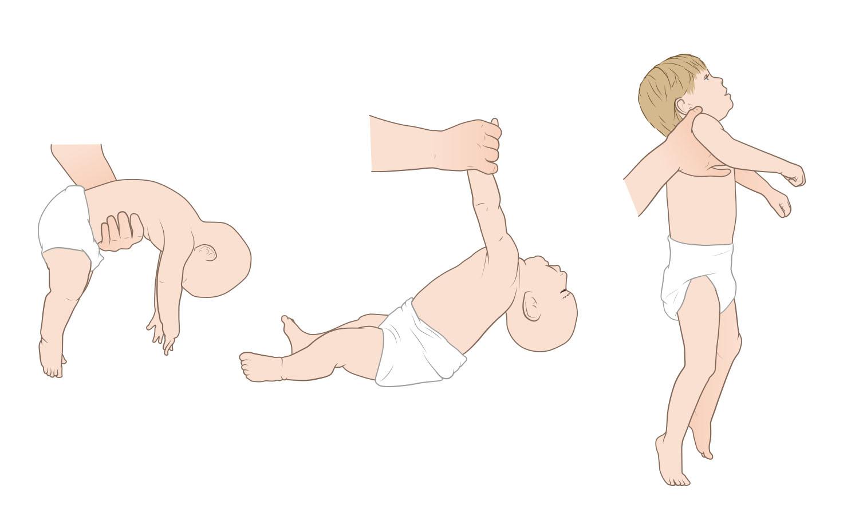 floppy infant