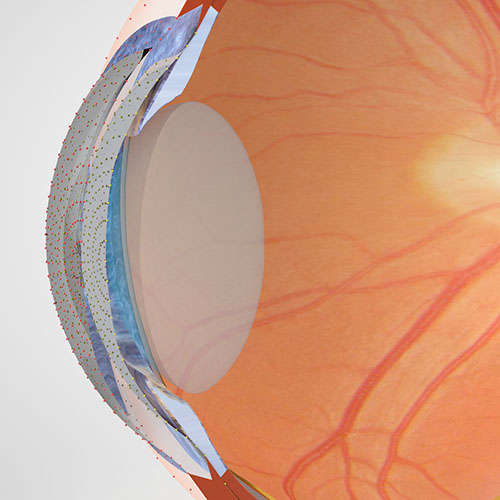 cornea meting